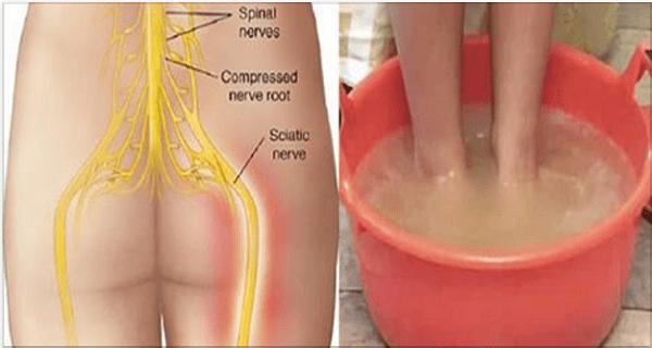Dites au revoir à la douleur du nerf sciatique avec cette méthode naturelle